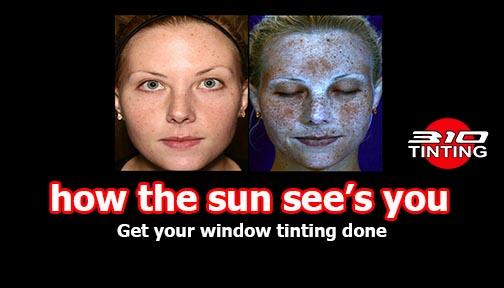 UV Photo Skin Damage Window Tinting
